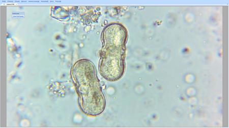 Analiza pyłkowa miodu - szczegółowa (2)